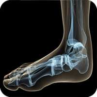 About 90 percent of people will recover from plantar fasciitis within a few months following conservative treatment.