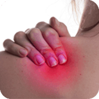 The term frozen shoulder encompasses a wide variety of restrictive shoulder disorders and can also be referred to as adherent bursitis, pericapsulitis, obliterative bursitis and periarthritis. Regardless of what it is called, manipulation of the joint and physiotherapy are needed to resolve the lack of mobility.